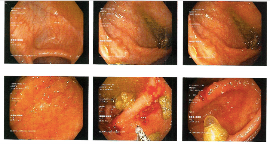 active Left-sided ulcerative colitis